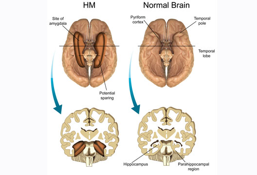 case study amnesia A receiver operating characteristic analysis revealed that vc's recollective- and  recollection and familiarity in dense hippocampal amnesia: a case study.